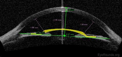 corneal imaging  introduction
