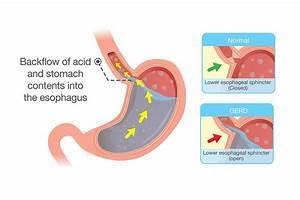 Gerd  Symptoms  Causes  Prevention  Treatment
