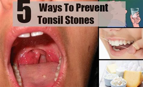 removing tonsil stones at home 5 best and effective ways for tonsil stones prevention 34703