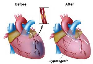 Issues Involving Coronary Artery Bypass Grafts - The Heart & Diving ... Coronary Artery Bypass Graft