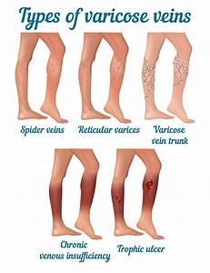 Laser Treatment for Varicose Veins Removal | Liposuction Korea
