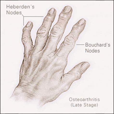 Nodal osteoarthritis treatment