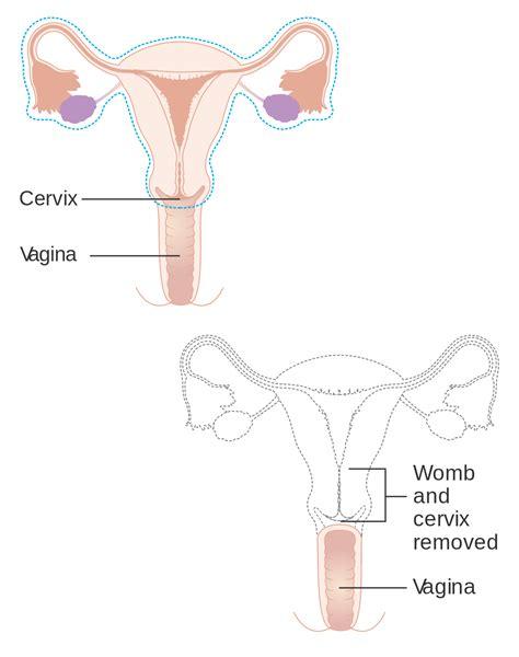 hysterectomy wikipedia