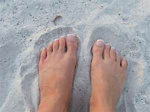 Воняют ноги и обувь это грибок