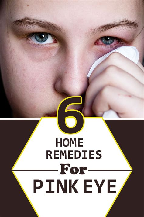 6 few home remedies for 6 excellent home remedies for pink eye diy health remedy