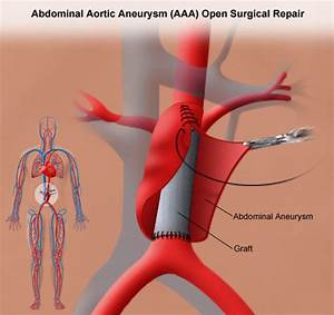 Abdominal Aortic Aneurysm Open Repair