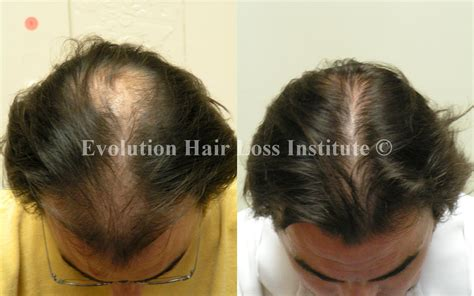 Delicate Natural Regrowth Of Lost Hair Representations