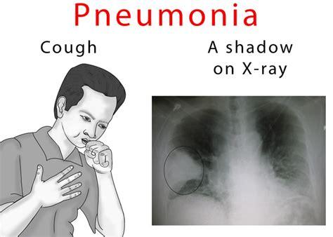 pneumonia ray chest cough symptoms xray blood long does signs know last ehealthstar sputum film shadows