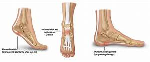 Plantar Fasciitis  What Is It And How Do Podiatrists Help
