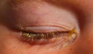 Excessive Eye Boogers  Causes  Types And Treatment