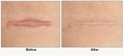 Gel Cicatriz Silicone Mepiform Cesarea Fita Lifesil