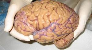 Images Of Human Brain Real | www.pixshark.com - Images ...