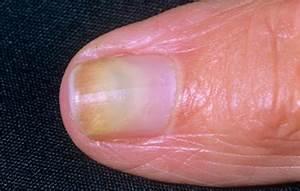 Ногти слоятся из за грибка лечение