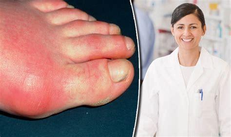 gout diet  ease symptoms  patients