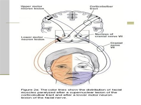 signs of facial nerve damage