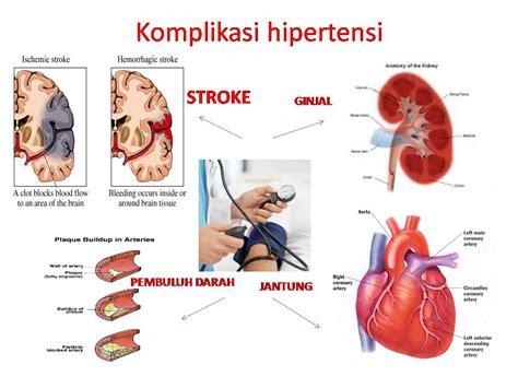 asuhan kehamilan asuhan keperawatan keluarga dengan hipertensi