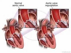 Medmovie com   Aortic ...Aortic Regurgitation