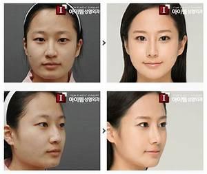 Korean Plastic Surgery Jaw Shaving