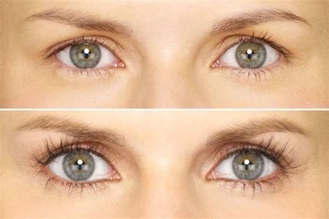 latisse eye color change my patient coordinator s experience trying latisse for