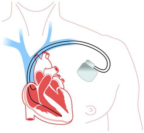 pacemaker chambre pacemaker définition technique docteurclic com