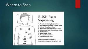 Use of bedside ultrasound in shock: RUSH protocol  Sepsis Cardiogenic shock