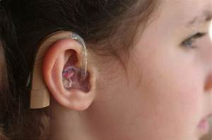 Hearing Loss | My Child Without Limits