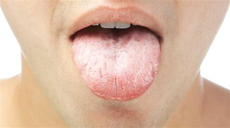 zungendiagnose  flecken belag bedeuten koennen
