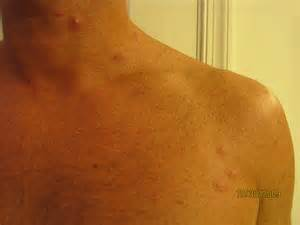 Bed Bug Bites On African Americans
