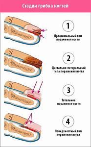 Грибка ногтей лечение березовым дегтем