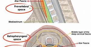 Retropharyngeal Abscess 3