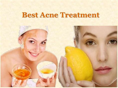 Best Acne Treatment. Online Virtual Assistant Sierra De Nanchititla. Sbi General Insurance Company Limited. Direct Auto Insurance Number. Ways Of Building Credit Colleges In Saginaw Mi. Cosmetology School For Teenagers. Doctorate Criminal Justice Magic Bar Cookies. Texas State University School Of Social Work. Clinical Depression Definition