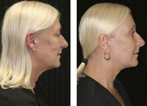 mid facelift fort lauderdale    miami