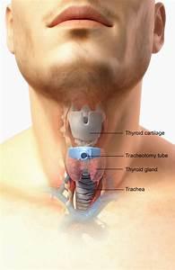 Epiglottitis - Ear  Nose  And Throat Disorders