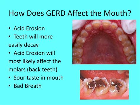 acid refluxgerd   affect   mouth body
