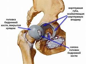 Артроз тазобедренного сустава лечение и симптомы