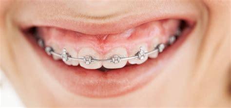 zahnspange kosten zahnzusatzversicherung lohnt sich nicht