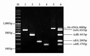 Agarose Gel Electrophoresis Of The Pcr Products Tested