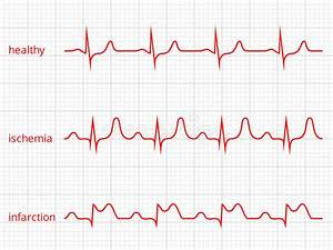 Heart Cardiogram Vector Charts Set. Healthy Heart Stock ...