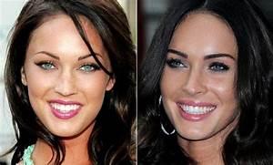 Celebrity Teeth: Before and After Veneers - Traceybell
