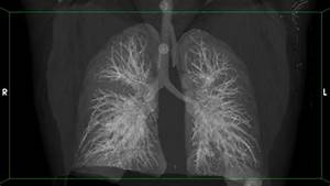 Better Views Of Tb Lungs May Save Lives And Stop Spread