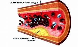 Препараты от аденомы и простатита