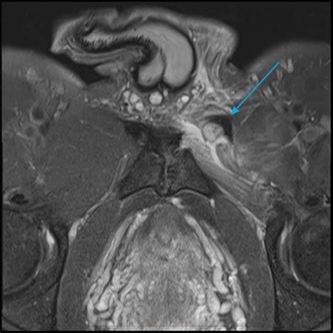MRI Achilles Tendon - Melbourne Radiology