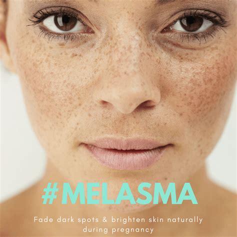 Pregnancy Skin Care Fade Dark Spots Naturally The