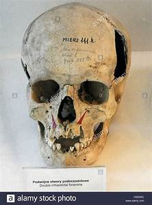 Skull showing the double infraorbital foramen in the ...