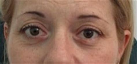 Dolore All Occhio Destro Interno by Tumori Palpebrali I Possibili Rimedi