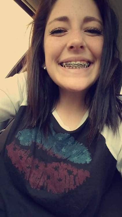 Babes With Braces Tumblr