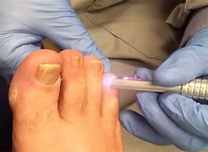 Удаление грибка ногтей лазером в твери