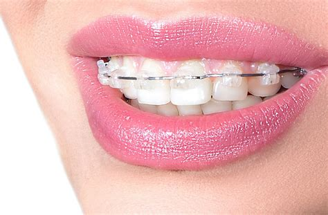 This plan may include braces, as well as other types of dental appliances, such as space maintainers and retainers. Orthodontic Braces Singapore   Kong Dental Surgery