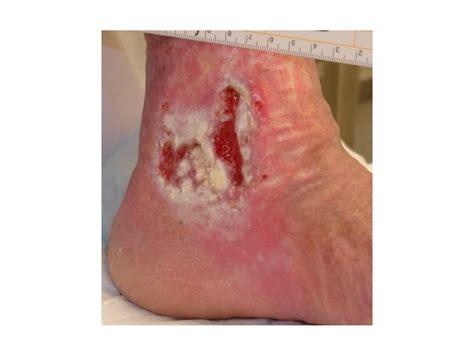 promoting healthy skin  venous leg ulcers  assessment