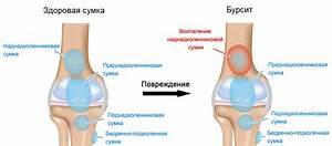 Эвалар препараты для суставов артроз